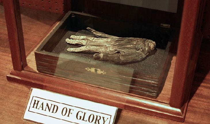 دست بریده ای که در یک موزه مهم نگهداری می شود