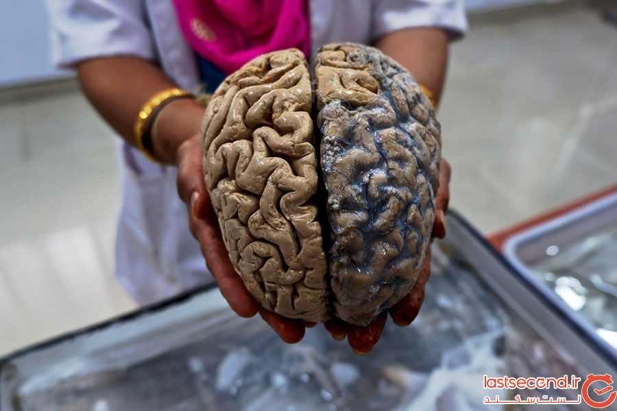 موزه مغز هند