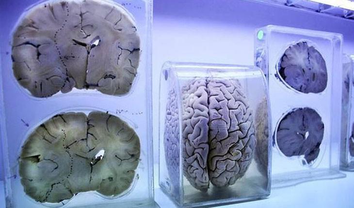 به دست گرفتن مغز واقعی انسان در موزه مغز هند