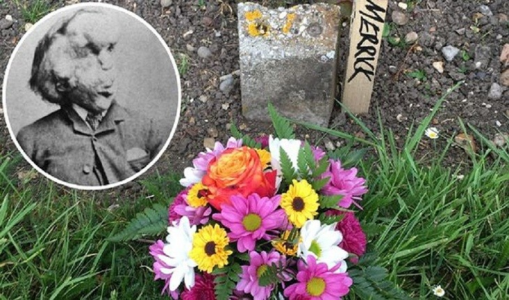 بقایای «مرد فیلی» در یک قبر بدون اسم در لندن کشف شد