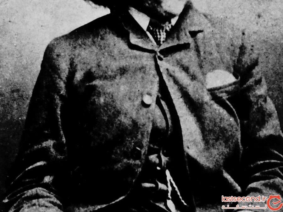 بقایای «مرد فیلی» تغییرشکل یافته در یک قبر بدون اسم در لندن کشف شد