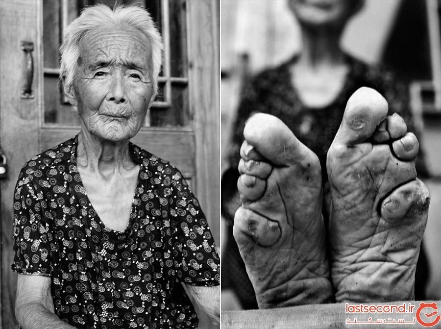 Foot-binding-in-China.jpg